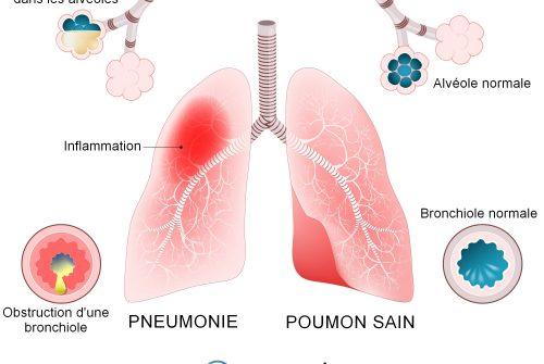 Coronavirus: ce sont les symptômes de la pneumonie causée par le covid-19